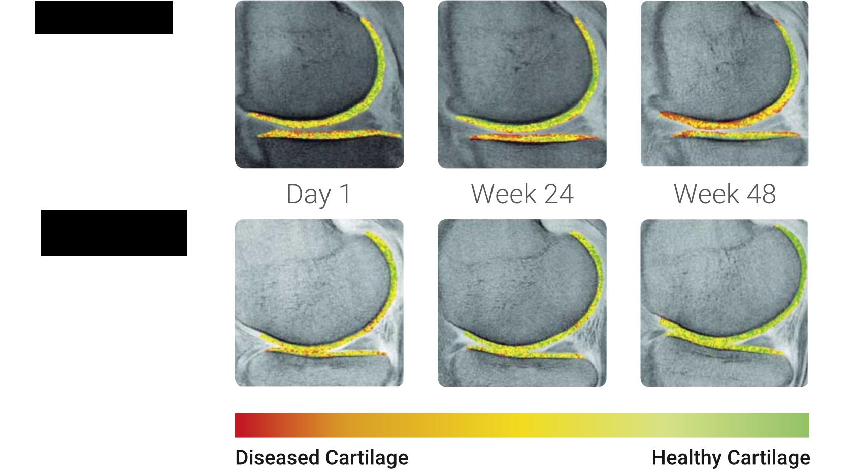 Régénération du cartilage. FLEX et COMBI